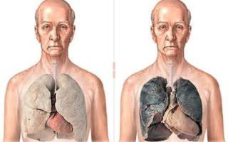 Внутренние органы курильщика фото