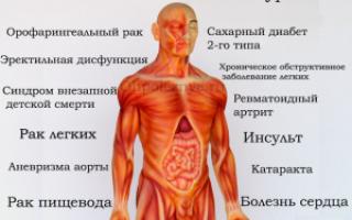 Болезни к которым может привести курение