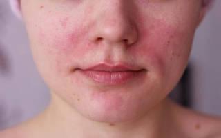 Аллергия на глицерин симптомы