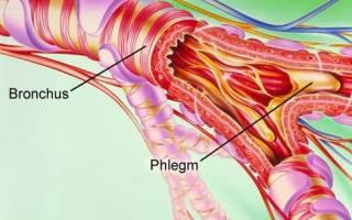 Буллезная эмфизема легких лечение