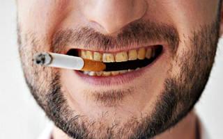 Зубы курильщика до и после