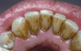 Зубной налет от курения