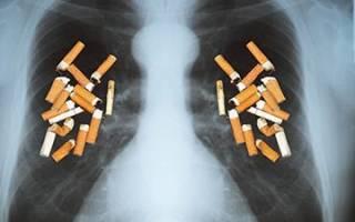 Как быстрее очистить легкие после курения