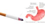 Боли в желудке после курения