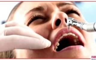 Бросил курить начали болеть зубы