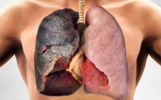 Боль в груди после отказа от курения