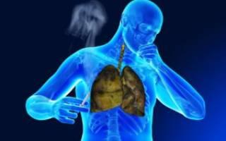 Бронхит курильщика как лечить